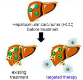 New liver cancer therapy uses nano technology